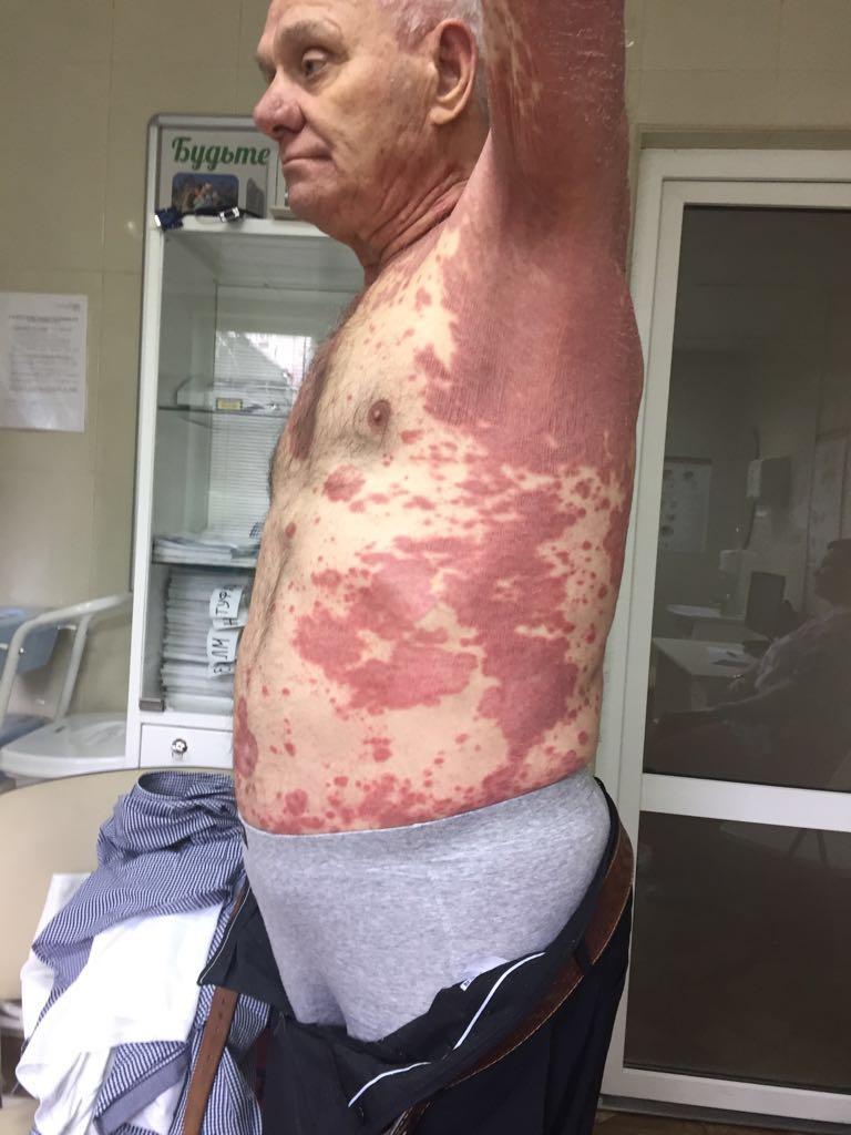 Огнева светлана михайловна псориатический артрит