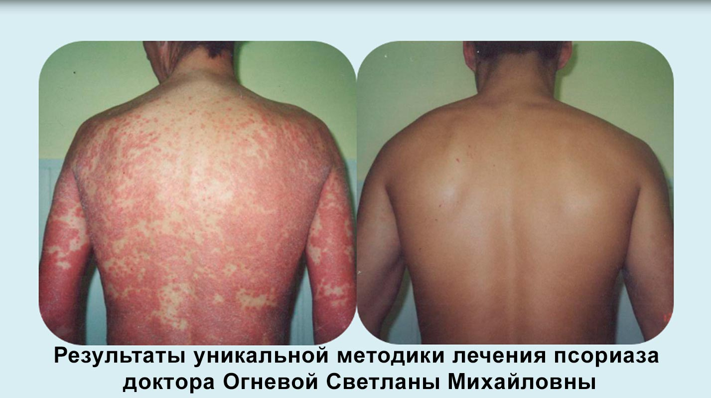 Псориаз У Грудничков Лечение