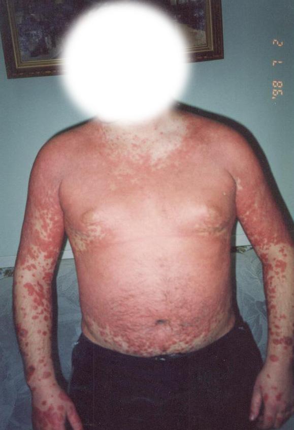 Доктор Огнева и успешное лечение псориаза