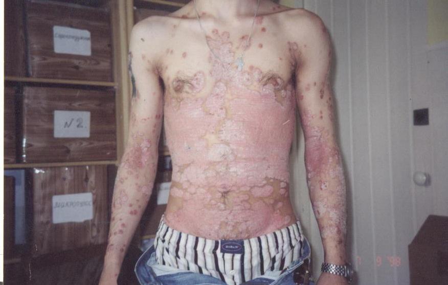 Доктор огнева лечение псориаза